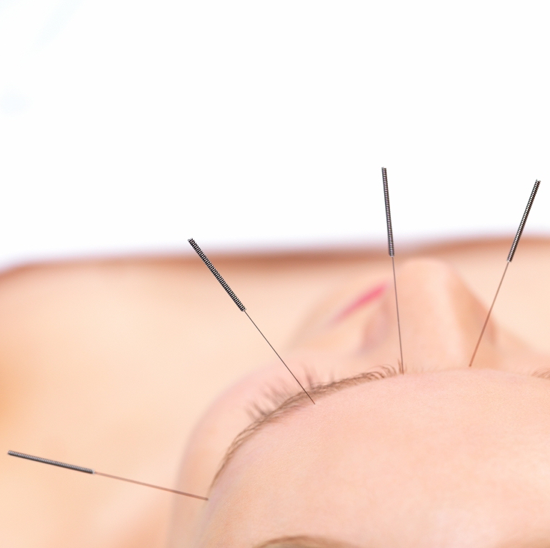 Cosmetic face acupuncture